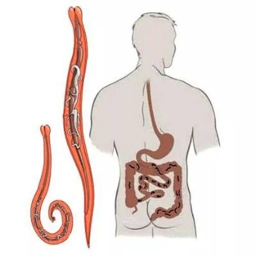 ami megerősíti a paraziták jelenlétét a testben